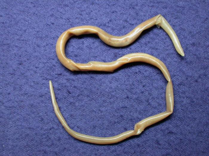 выявить ли паразиты в организме